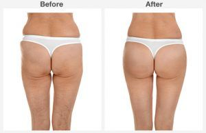 liposuction 1 1