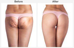 liposuction 3 3