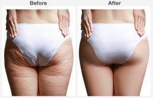 liposuction 4 4
