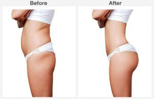 liposuction 5 5
