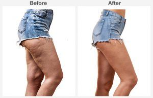 liposuction 6 6