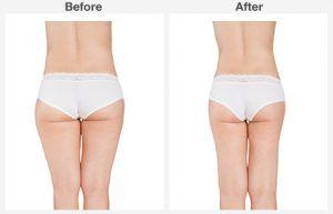 liposuction 8 8