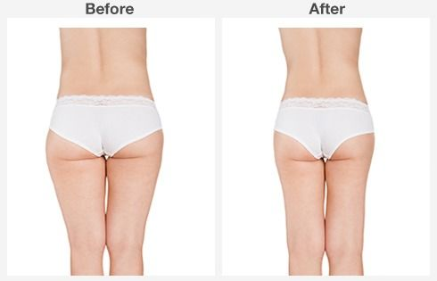 Liposuction Before & After