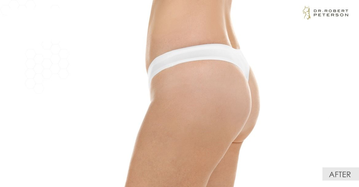 After- Liposuction