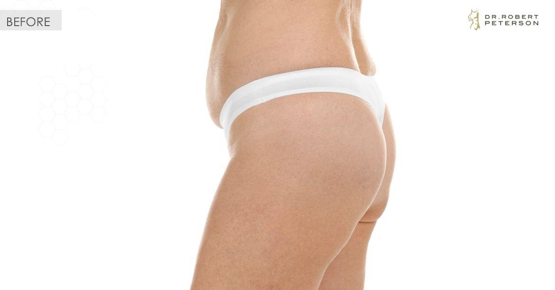 Before- Liposuction