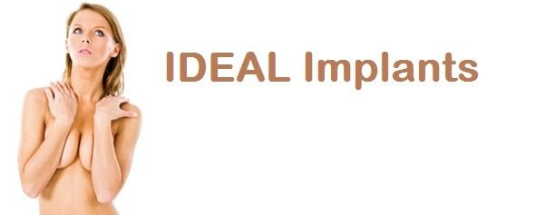 IDEAL Implants Houston