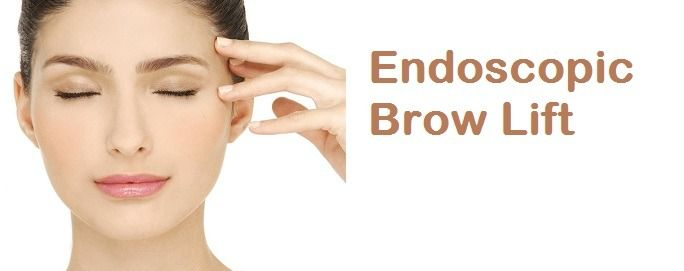 Brow Lift Houston