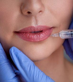 Lip Filler Augmentation