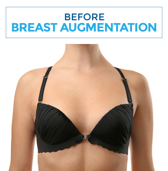 Before-breastaugm