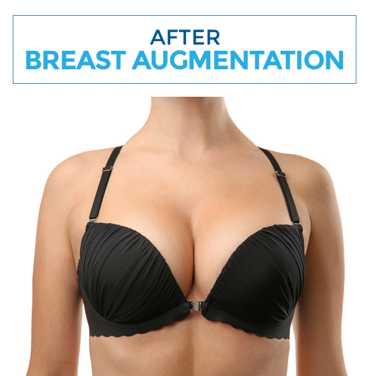 After-breastaugm