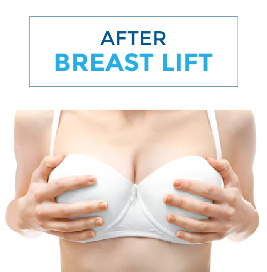 After-breast