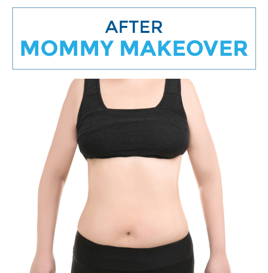 After-mommy